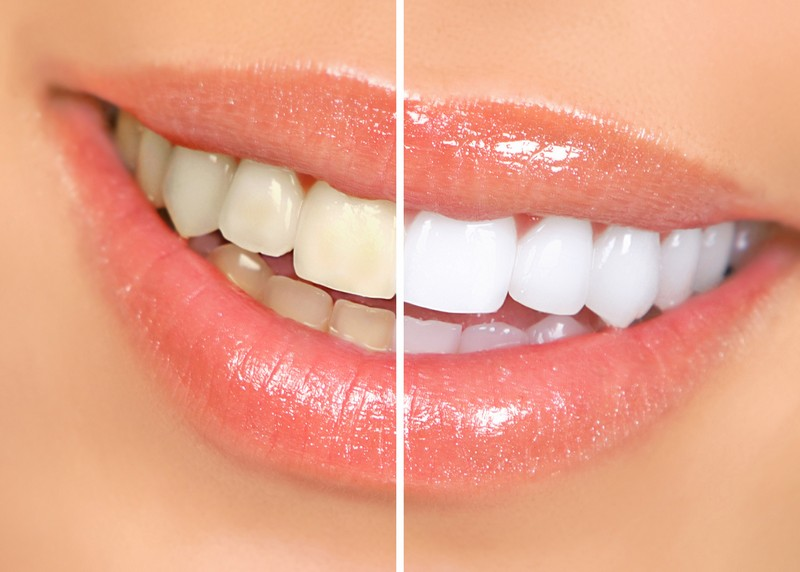 teeth whitening services Alameda, California